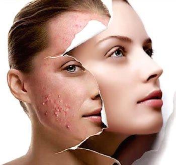 cải thiện làn da